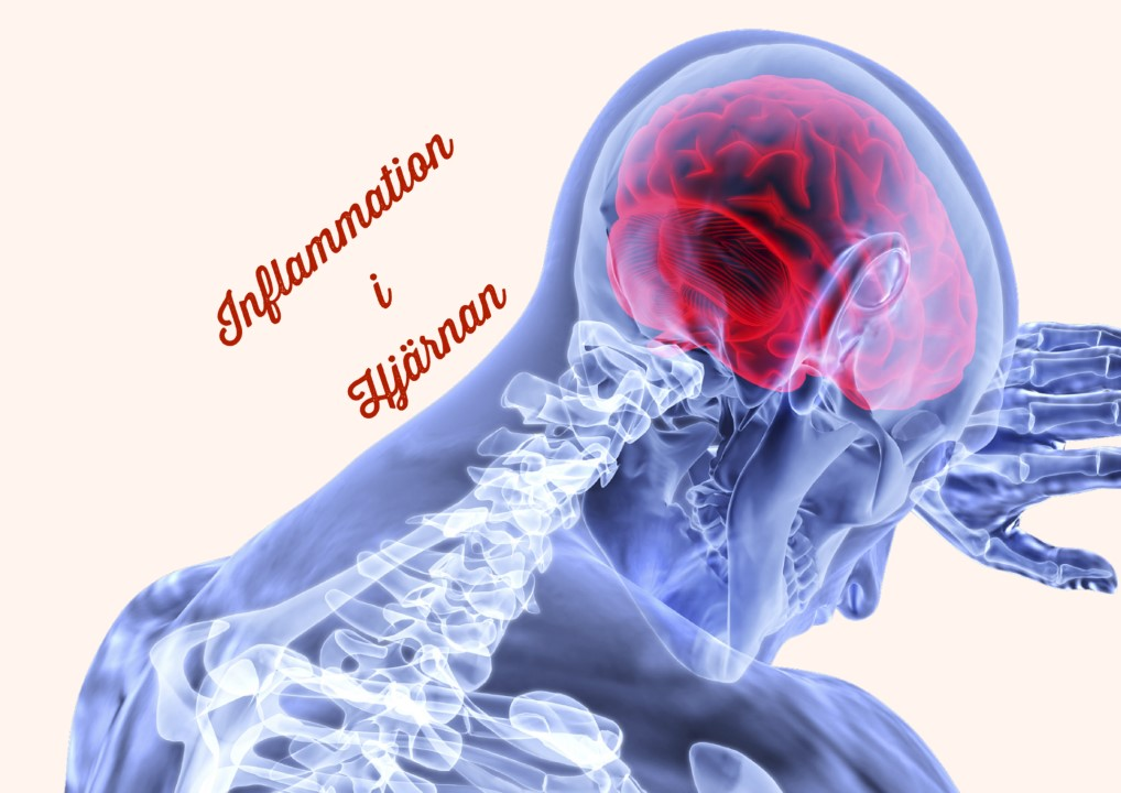C-vitamin en möjlig behandling mot inflammation i hjärnan och centrala nervsystemet?